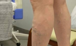 Лечение варикоза эвлк