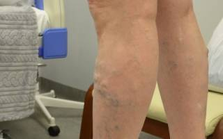Лечение лазером вен нижних конечностей