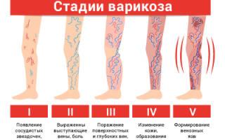 Венозные узлы на ногах фото