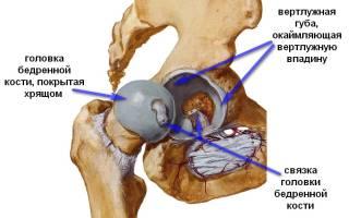 Резкая боль в тазобедренном суставе при ходьбе