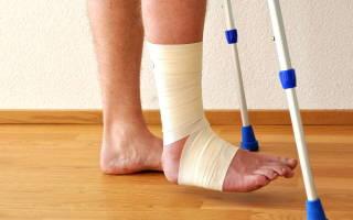 Как снять отек после перелома пятки