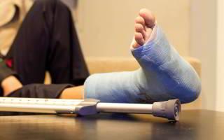 Признаки перелома стопы ноги