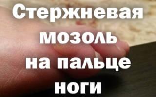 Как удалить мозоль на ноге со стержнем