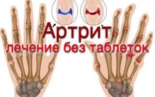 Как победить ревматоидный артрит
