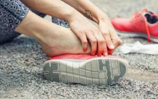 Болит плюсна стопы при ходьбе