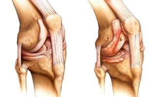 Больно разгибать колено после сидения