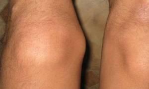 Как вылечить шишки на коленях народными средствами