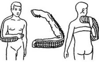Первая помощь при переломах нижних конечностей