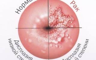 Неоплазия и дисплазия в чем разница