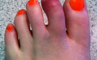 Вывих пальца на ноге лечение