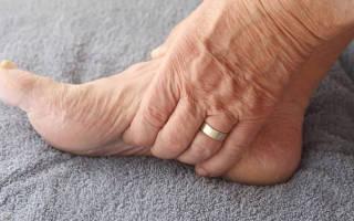 Отеки ног при диабете 2 типа