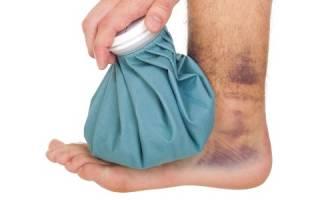 Чем лечить ушиб ноги с отеком