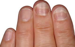 Ногти на ногах не прирастают к коже