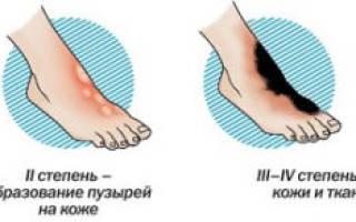 Обморожение ног симптомы