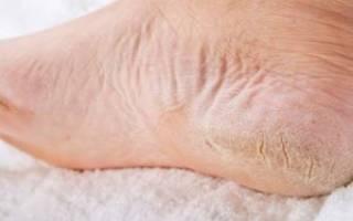 Сухие стопы ног