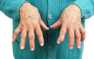 Аутоиммунные заболевания суставов