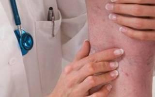 Заболевание вен нижних конечностей симптомы лечение