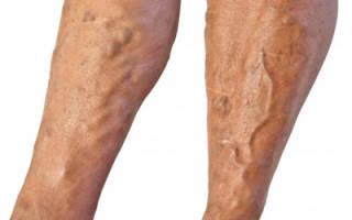 Закупорка вен на ногах лечение народными средствами