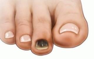 Ногти на ногах стали коричневыми