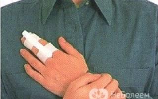 Первая помощь при переломах костей конечностей