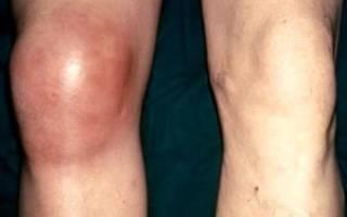 Абсцесс коленного сустава