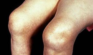 Опухоль под коленом спереди