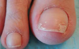 Слоятся ногти на ногах причины и лечение