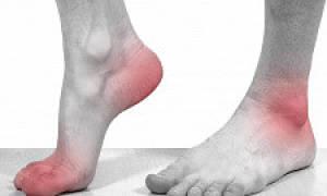 Гангрена нижних конечностей лечение без операции