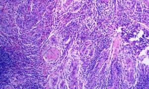 Пролиферация цилиндрического эпителия шейки матки лечение