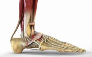 Трещина пяточной кости симптомы и лечение