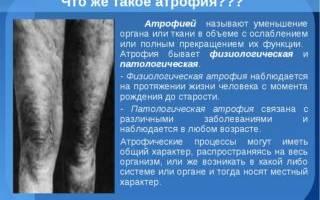Гипотрофия мышц голени