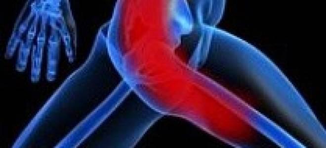 Боль в бедре и ягодице причины