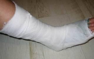 После снятия гипса с ноги больно ходить