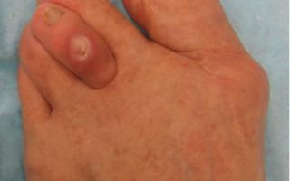 Молоткообразная деформация пальцев стопы фото
