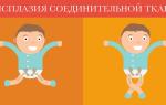Врожденная дисплазия соединительной ткани