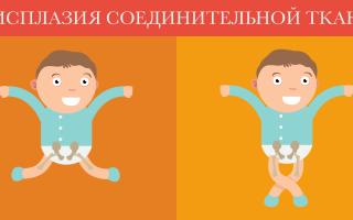 Синдром недифференцированной дисплазии соединительной ткани