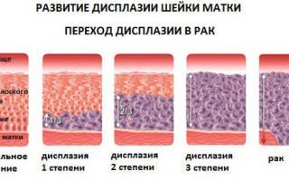 Очаговая дисплазия 1 степени