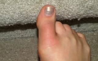Почему синеют ногти на больших пальцах ног