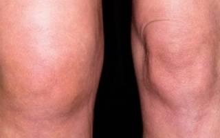 Почему опухают суставы на ногах