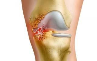Острый гнойный артрит