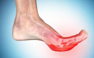 Почему сводит судорогой пальцы на ногах причины