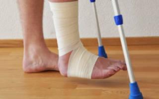 Как долго болит нога после перелома лодыжки