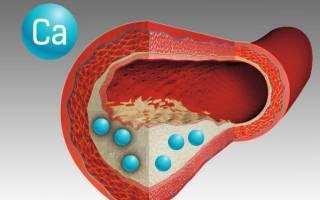 Медиакальциноз артерий нижних конечностей