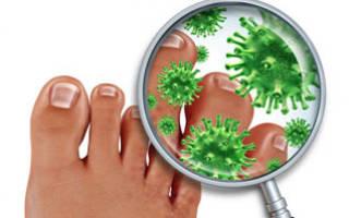 Лечить грибок на ногах в домашних условиях