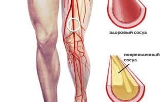 Склероз нижних конечностей лечение в домашних условиях