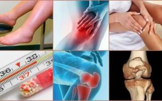 Артрозо артрит тазобедренного сустава симптомы и лечение