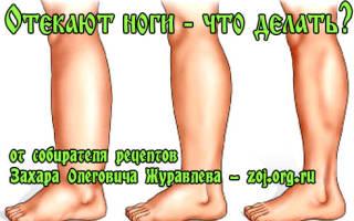Застой лимфы в ногах лечение