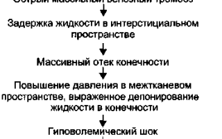 Белая флегмазия