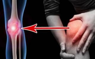 Признаки артрита колена