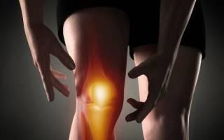 Боль в коленной чашечке при надавливании
